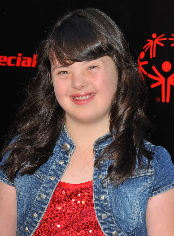 katelyn reed down syndrome