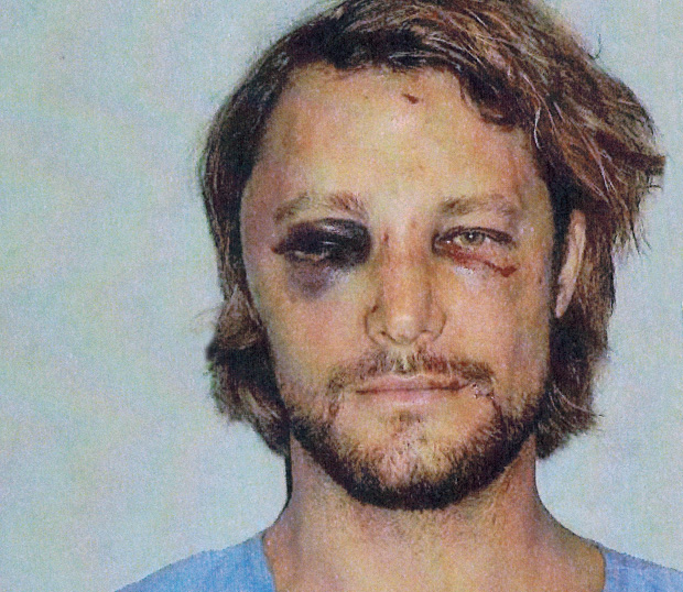 Gabriel Aubry Assaulted